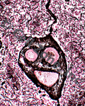 Reticular Connective Tissue that looks like a face